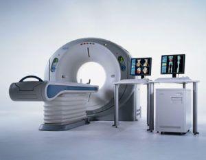 КТ-ангиография брюшного отдела аорты