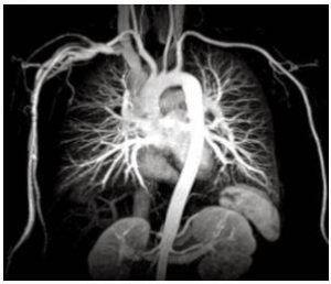 КТ-ангиография грудного отдела аорты