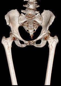 кт костей таза