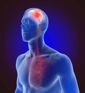 КТ для оценки эффективности химиотерапии