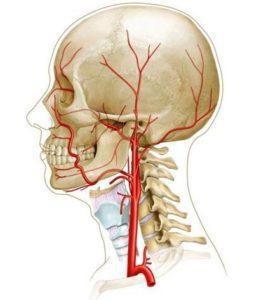 КТ внутренней сонной артерии