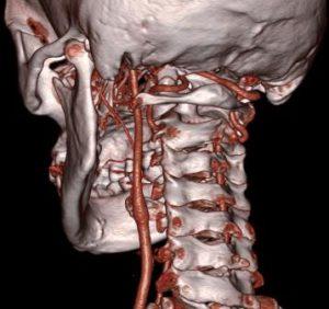КТ аневризм внутренней сонной артерии